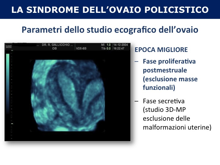 Aspetti ecografici della Sindrome dell'Ovaio Policistico (PCOS)